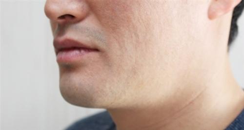 対策 臭い が の 鼻 脂